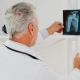 Doctor holding and viewing an x-ray of a bone or joint.
